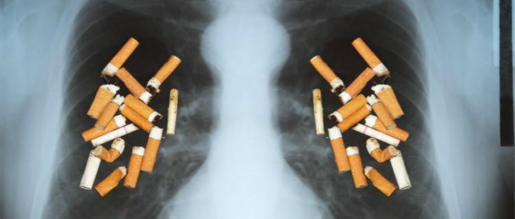 老烟枪如何防范肺癌?