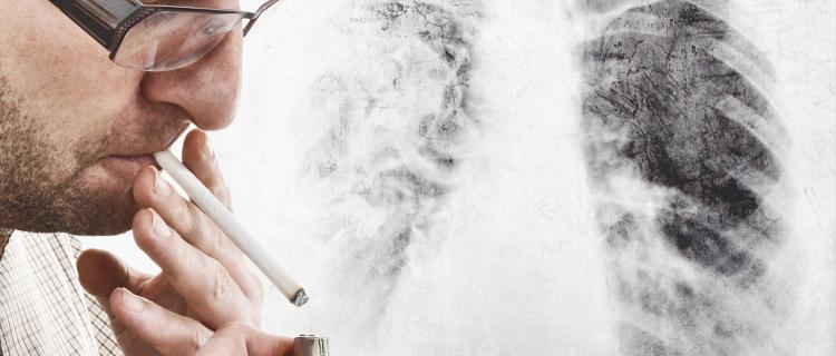 不抽烟,得的肺癌一样吗?