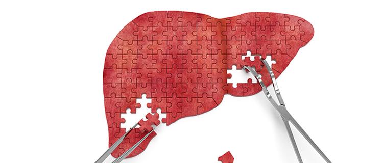 肝癌是乙肝患者最后的宿命?