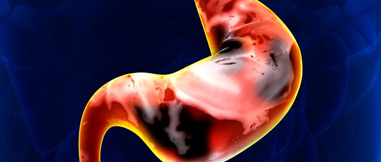 警惕这5种症状可能是胃癌!